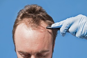 fue-hairtransplant-turkey