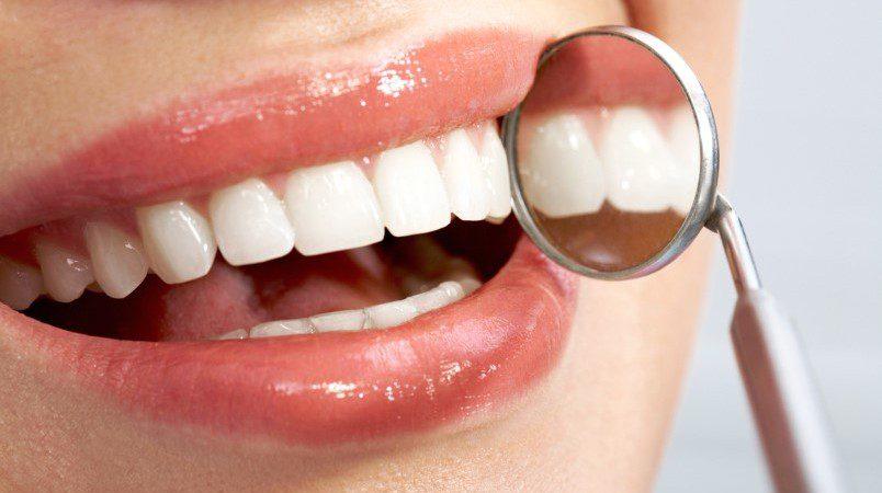 Имплантация зубов или Возвращение красивой улыбки